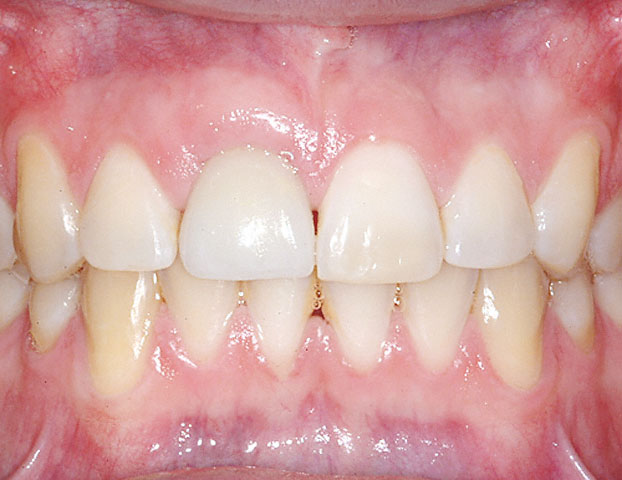 Implant Crown on Right Incisor