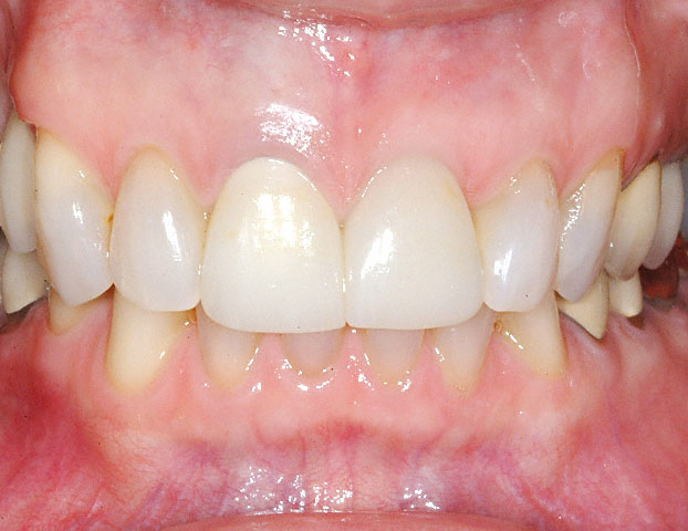 Implant Crown on Left Incisor