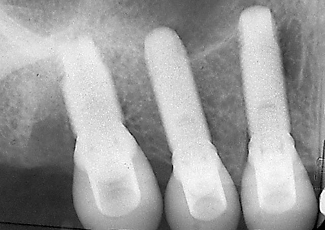 Three Dental Implants replacing them